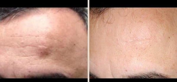 forehead lipoma removal